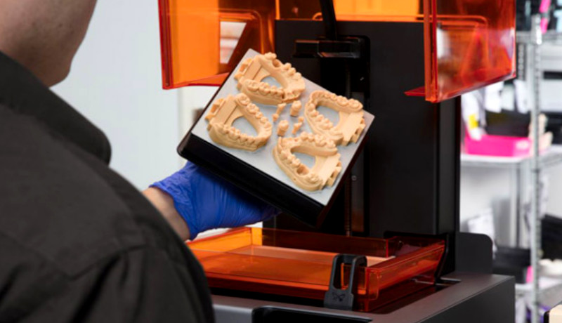 Odontología con Impresión 3D: Solución personalizada