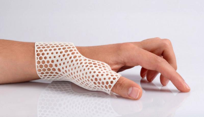 Órtesis 3D: Soportes médicos impresos en 3D
